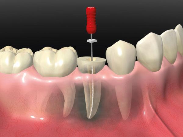 odontología conservadora en gijón endodoncia clínica dental bucodent