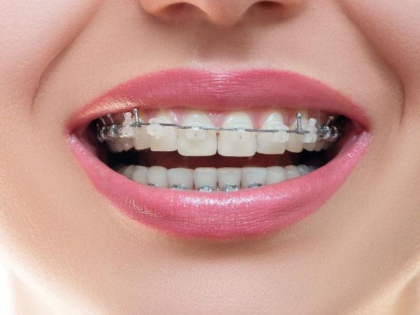 ortodoncia en Gijón brackets cerámicos clínica dental bucodent