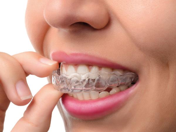 clínica dental en gijón bucodent ortodoncia en gijón dentista en gijón