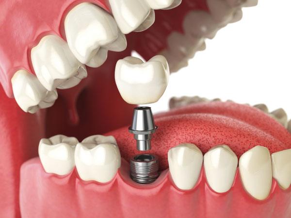 clínica dental en gijón bucodent implantes dentales en gijón dentista en gijón