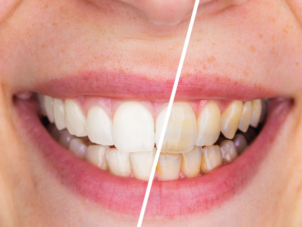 estética dental en gijón blanqueamiento dental clínica dental bucodent
