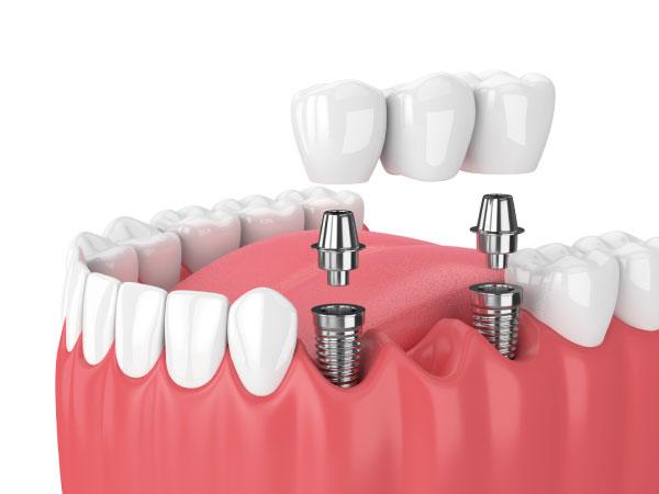implantes dentales en Gijón puente cerámico sobre implantes