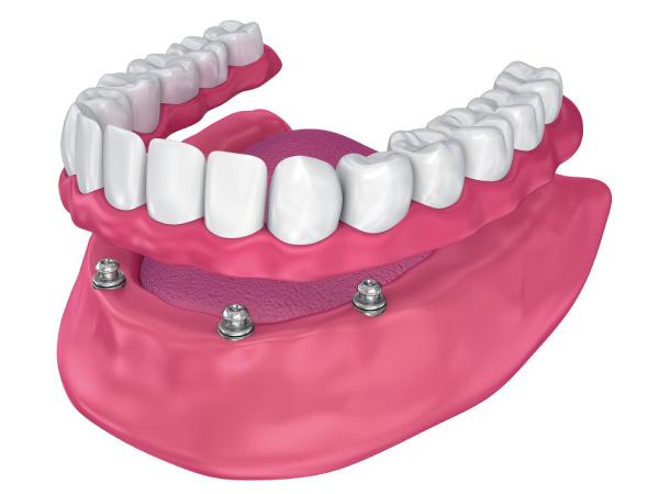 implantes dentales en gijón sobredentadura locator