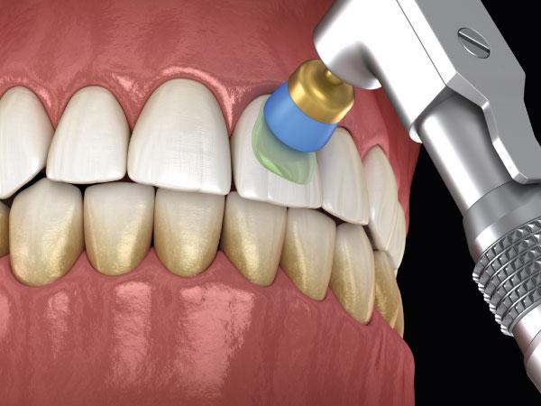 odontología conservadora en gijón limpieza dental clínica dental bucodent