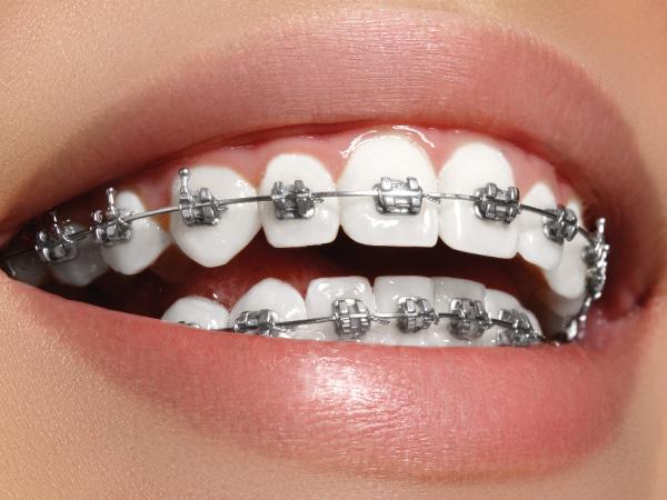 ortodoncia en Gijón brackets metálicos clínica dental bucodent