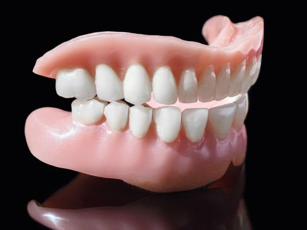 prótesis dentales en Gijón dentadura postiza clínica dental bucodent
