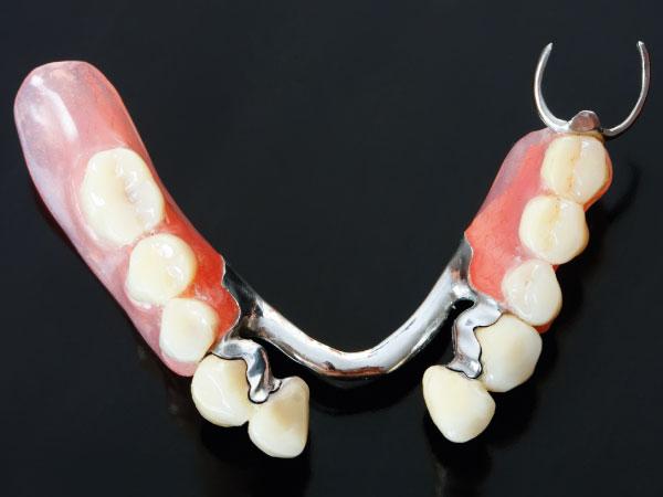 prótesis dentales en Gijón prótesis parcial esquelético clínica dental bucodent