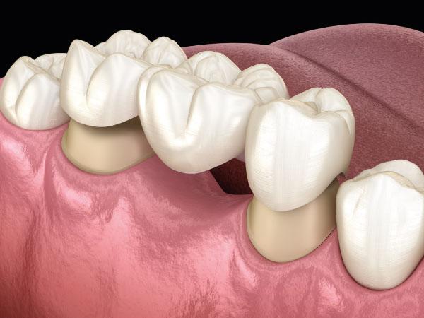 prótesis dentales en Gijón puente cerámico clínica dental bucodent