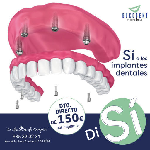 Promociones Clínica dental en Gijón | Bucodent